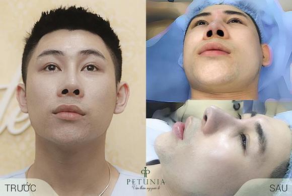 Viện thẩm mỹ Quốc tế Petunia, Nâng mũi, Nhấn mí, Phẫu thuật thẩm mỹ