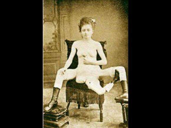 chuyện lạ, cô gái kỳ lạ, nữ mại dâm, 3 chân, 4 ngực, 2 âm đạo