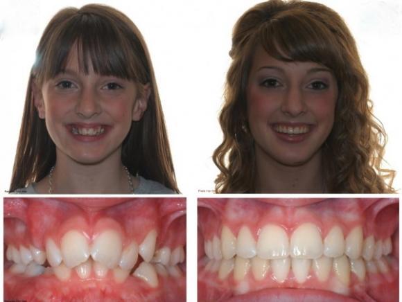niềng răng, chỉnh nha ở độ tuổi nào, niềng răng khi nào,