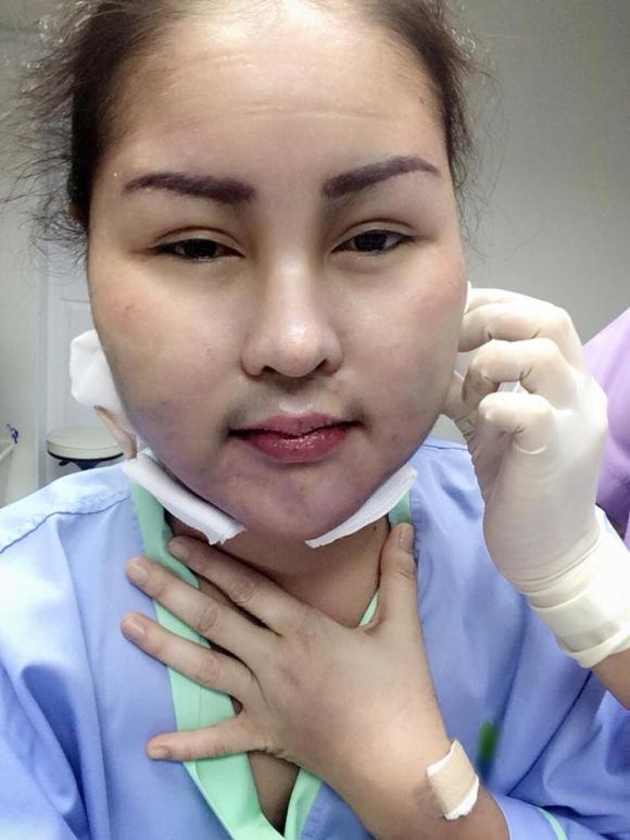 hút mỡ, hút mỡ làm đẹp, khuôn mặt kinh dị sau khi hút mỡ, phẫu thuật thẩm mỹ, làm đẹp