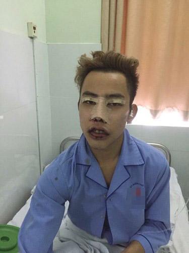 Tùng Sơn,Công chúa thủy tề Tùng sơn, tùng sơn phẫu thuật thẩm mỹ