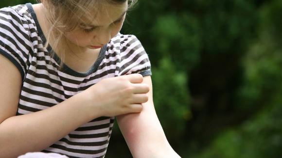 muỗi, muỗi đốt, cách trị muỗi đốt, trị vết muỗi đốt, vết muỗi đốt,  mách mẹ cách trị vết muỗi đốt, muỗi cắn