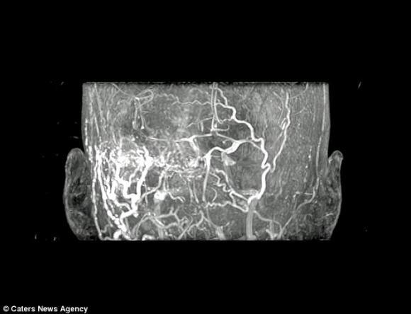 ù tai,tiếng ù trong tai, bệnh dị tật động mạch trong não bẩm sinh (AVM), thấy tiếng ù tai,chăm sóc sức khỏe