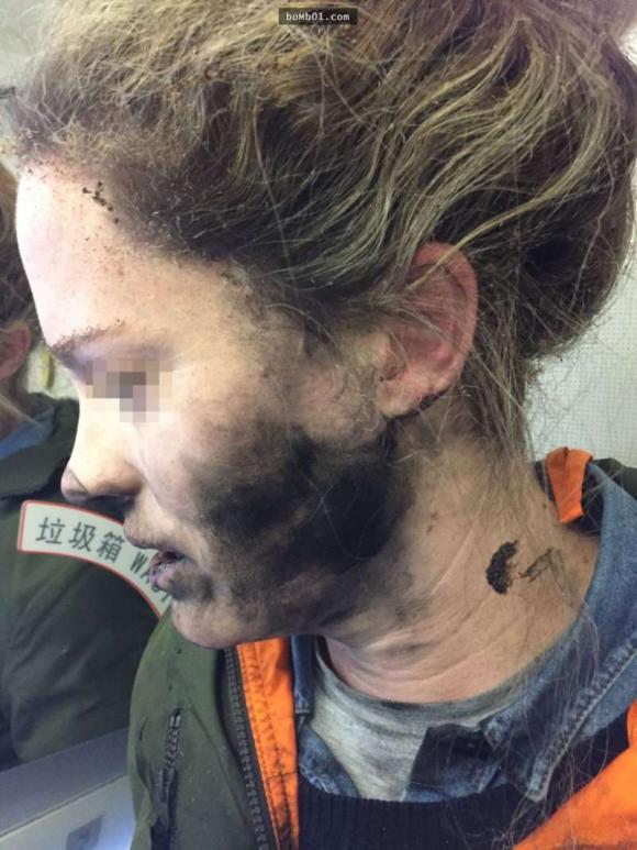 Người phụ nữ ngồi trên máy bay đột nhiên cảm thấy toàn bộ amwjt nóng ran, mặt nóng ran như đang bị đốt cháy, sự thật khiến mọi người sửng sốt