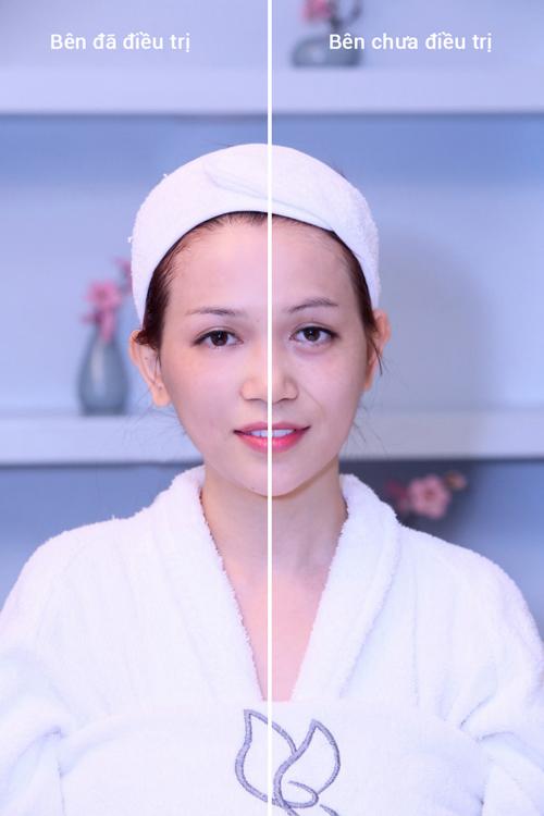 Sỹ Thanh, BB Thanh Mai, Trẻ hóa da