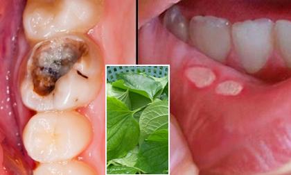 gel tái tạo men răng, tái tạo men răng hiệu quả, chữa sâu răng