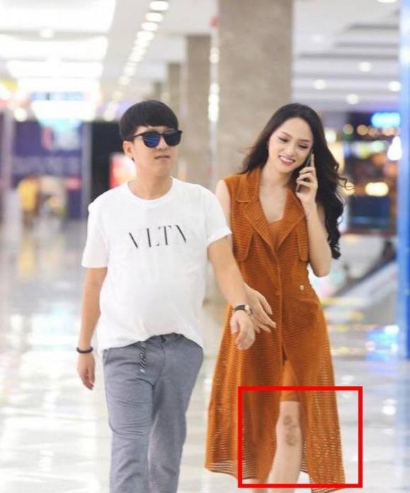 Hoa hậu Hương Giang,Hương Giang lộ vết sẹo ở chân,sao Việt