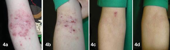 viêm da cơ địa trẻ em, trị viêm da cơ địa trẻ em, Dr Michaels Dermatinex