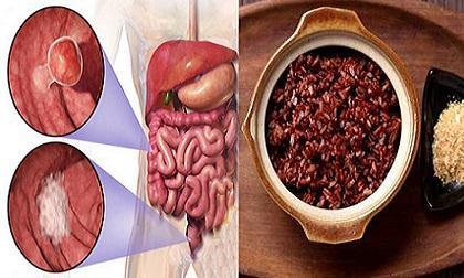 đại trực tràng, ung thư, polyp