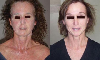 Dr. Michaels Psoriasis & Skin Clinic, Trị bệnh vẩy nến, sản phẩm thảo dược Dr Michaels