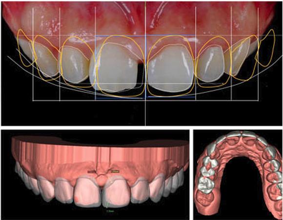 bọc răng sứ, Nha Khoa Kim