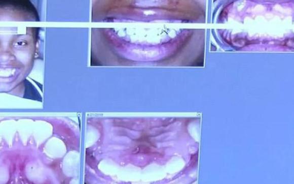 niềng răng, tai nạn niềng răng, tai nạn niềng răng đáng sợ trên thế giới