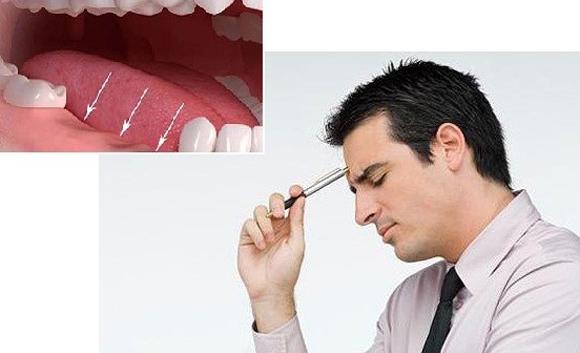 trồng răng Implant, Nha Khoa Đông Nam, Phòng khám răng uy tín