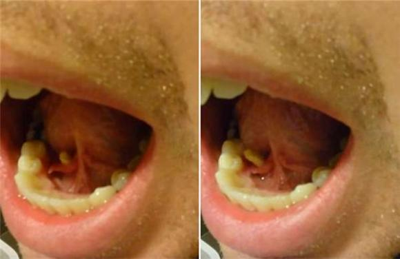 vật thể lạ trong miệng, lấy sỏi trong miệng, sỏi nước bọt