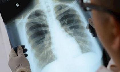 ung thư phổi, ung thư, dấu hiệu của ung thư phổi