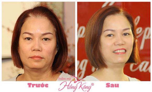 thẩm mỹ Hồng Kông, Phượng Hồng Kông, Trẻ hóa da