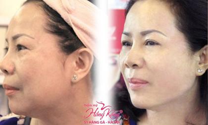 Phun xăm thẩm mỹ, Phun môi, Thẩm mỹ Hồng Kông