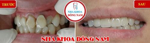 Dán răng sứ, Nha Khoa Đông Nam, Bọc răng thẩm mỹ