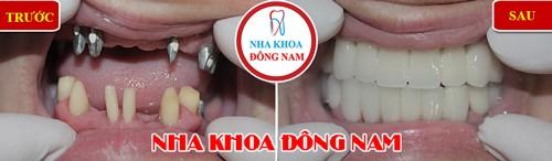 Nha khoa Đông Nam, phục hình răng nguyên hàm, Cấy ghép implant