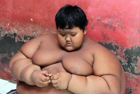 cậu bé béo nhất thế giới,cậu bé nặng 200kg ở Indonesia