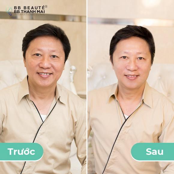 BB Thanh Mai, Ngô Thanh Vân, Trẻ hóa da công nghệ cao