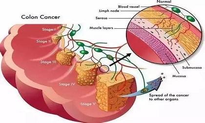 ung thư, dấu hiệu ung thư ruột, ung thư ruột