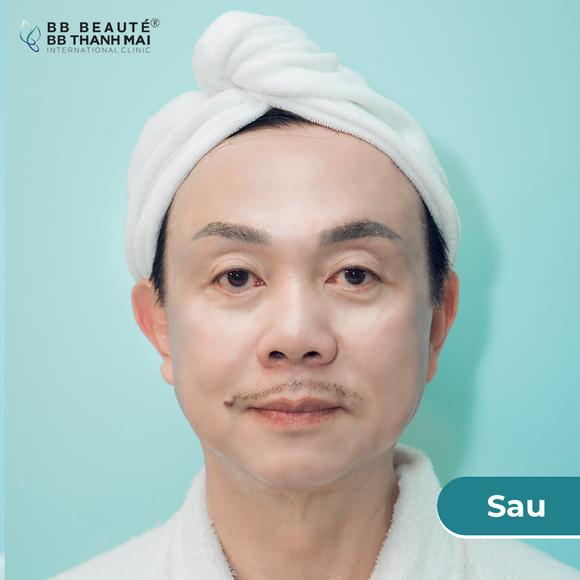 BB Thanh Mai, Trẻ hóa da, Xóa nhăn