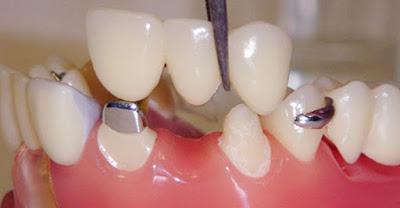 Làm Cầu Răng Sứ, nha khoa đông nam, răng giả