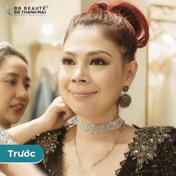 BB Thanh Mai, Trẻ hóa da, MC Thanh Mai