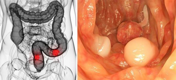 Ung thư đại trực tràng, nguyên nhân gây ung thư, ăn uống không khoa học