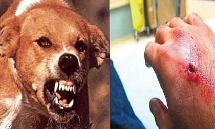 Chó cắn bé trai trong thang máy, chó tấn công người