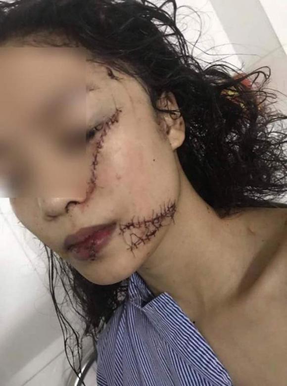Thiếu nữ 18 tuổi bị rạch mặt, rạch mặt thiếu nữ ở Bắc Ninh, Tin pháp luật