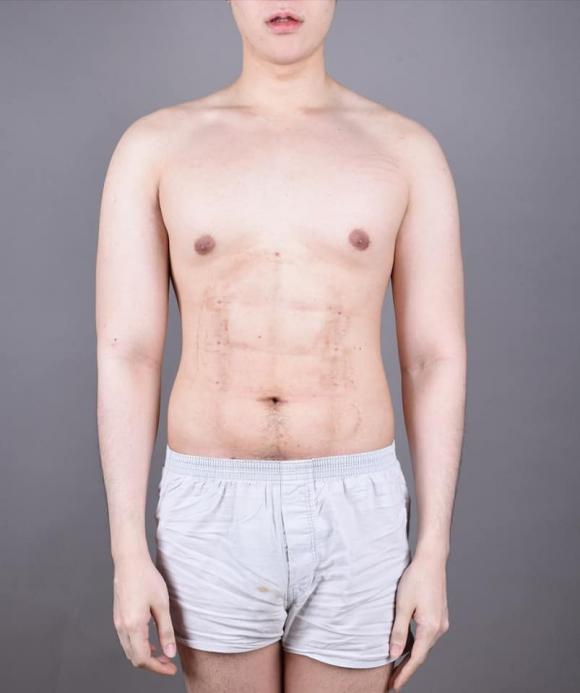 phẫu thuật thẩm mỹ, phẫu thuật cơ bụng, hút mỡ