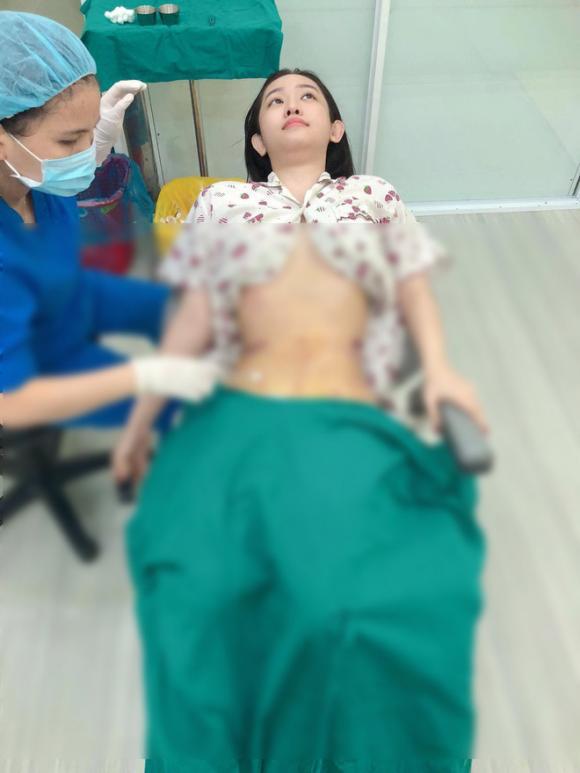 Thúy Vi, hot girl Cà Mau, Thúy Vi phẫu thuật thẩm mỹ