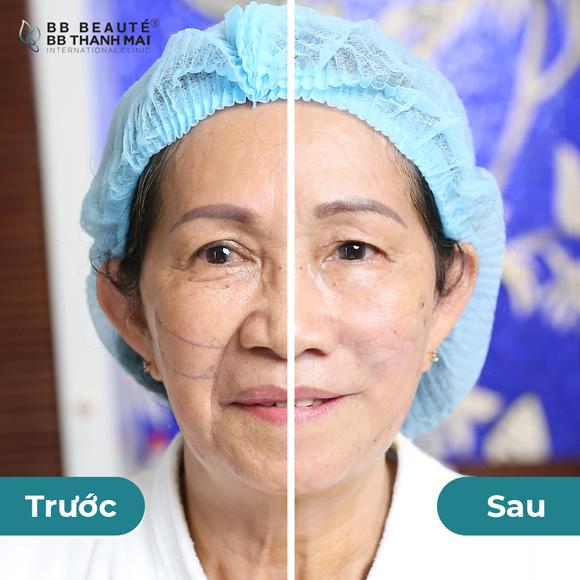 Phi Nhung, Trẻ hóa da, BB Thanh Mai, căng chỉ collagen