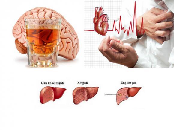 Uống rượu bia thường xuyên, Tác hại của bia rượu, Thói quen gây bệnh
