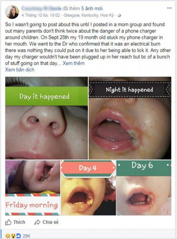 Quên rút sạc điện thoại, Trẻ em gặp nạn, Tai nạn cho trẻ, Trẻ bị sạc điện thoại giật