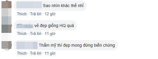 Min, Min khác lạ, Min giống Hari Won, Min phẫu thuật thẩm mỹ