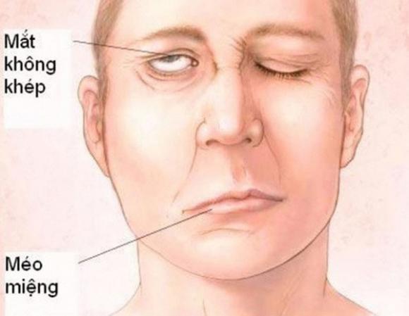 Đột quỵ, dấu hiệu đột quỵ, chăm sóc sức khỏe