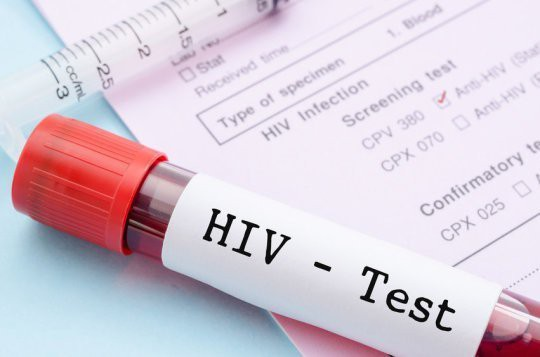HIV, Chữa khỏi HIV, Thuốc chữa HIV