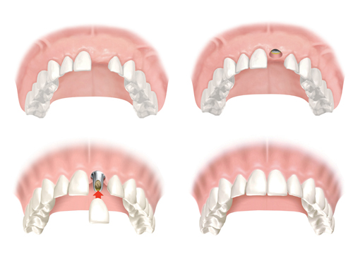 Trồng răng Implant, nha khoa đông nam, răng sứ