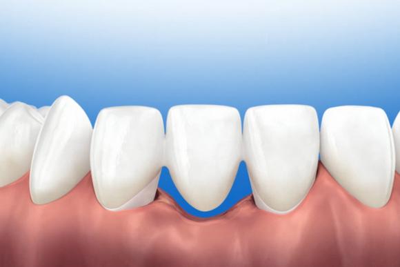 Nha khoa đông nam, trồng răng Implant, Răng sứ, Răng giả tháo lắp