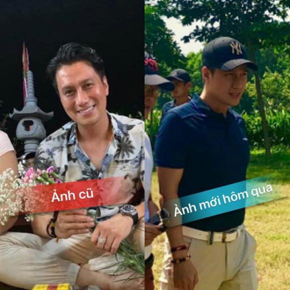 Quế Vân, Việt Anh, phau thuat thẩm mỹ, du lịch Mỹ