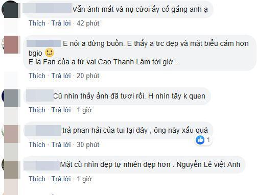 Việt Anh, phẫu thuật tham my, Quế Vân