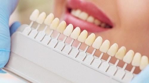 Những hiểu lầm tai hại về răng sứ thẩm mỹ
