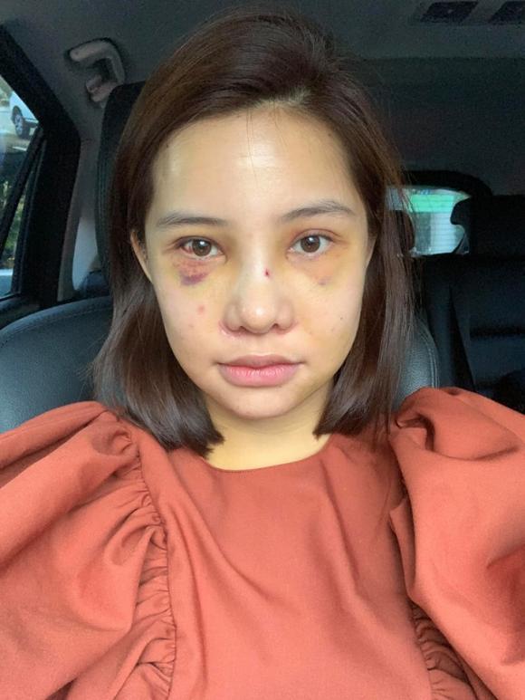 Lưu Đê Ly, phẫu thuật thẩm mỹ, sao Việt