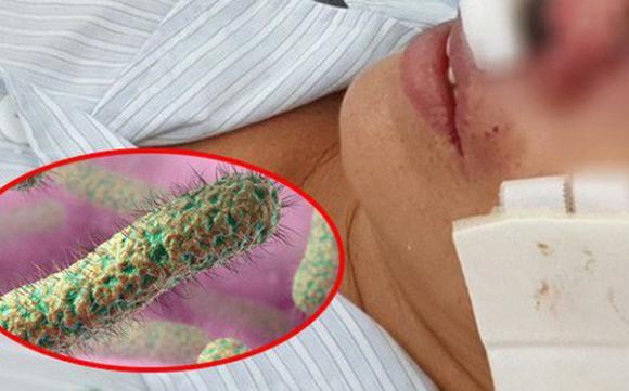 Vi khuẩn ăn thịt người, sức khoẻ,  Whitmore, bệnh lạ