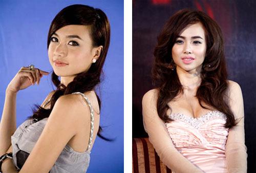 Sao Việt xuống sắc vì phẫu thuật thẩm mỹ