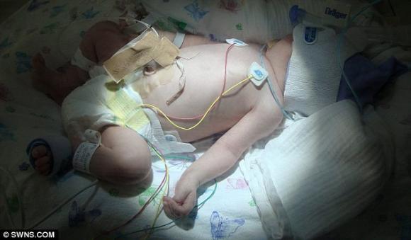 Em bé sống sót kỳ diệu khi sinh ra không có máu trong cơ thể