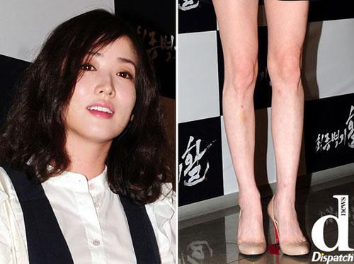 Cận những đôi chân mụn sẹo 'kinh dị' của mỹ nhân